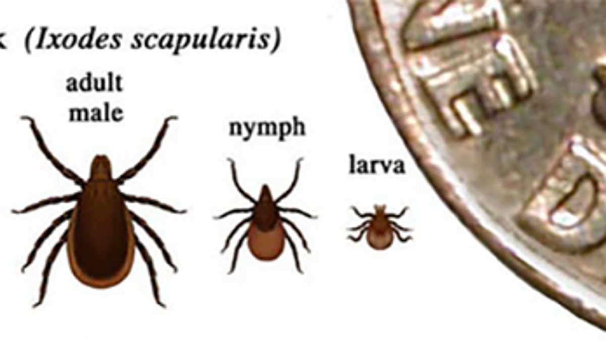 Did You Know Getting Bit By A Tick Could Paralyze Your Face?