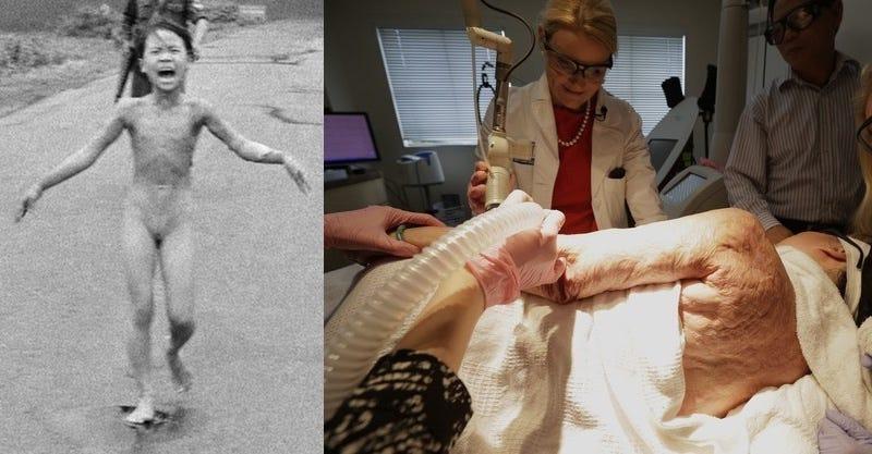 40 años después de la histórica foto, la niña del Napalm cura sus heridas con tecnología láser