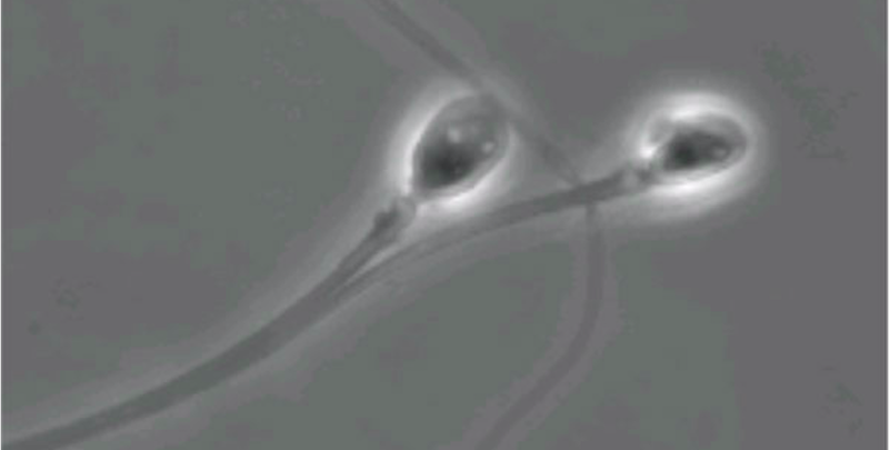 Illustration for article titled Chemically Freezing Sperm Tails Could Be the Key to a Reversible Male Contraceptive