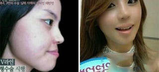 Illustration for article titled Oh god, Korean plastic surgery will never cease to amaze me