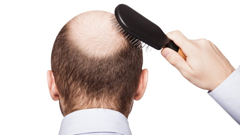 Illustration for article titled Researchers Grow New Hair From Stem Cells For the First Time