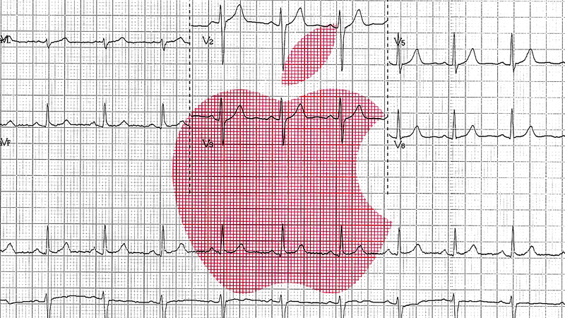 Illustration for article titled The Apple Watch's Latest Trick Could Be Battling Pseudoscience But Questions Remain