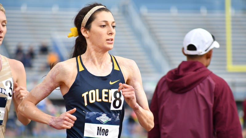 Illustration for article titled College Runner Who Almost Burned To Death Reaches NCAA Final Two Years Later