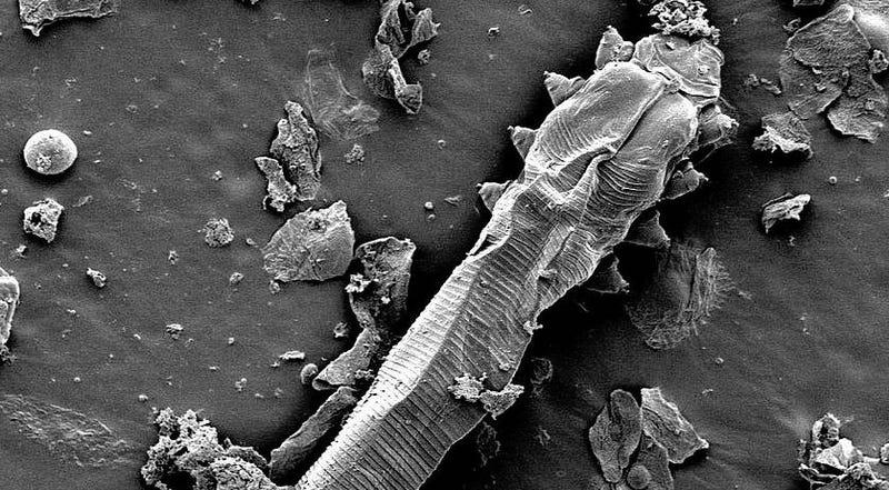 Illustration for article titled En estos momentos hay una criatura microscópica recorriendo tu cara, y un día pondrá un huevo para que el ciclo continúe