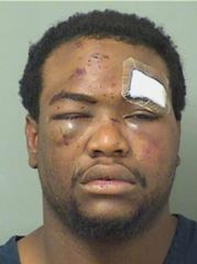 Byron Harris's mug shot from the night he was beaten (Boynton Beach, Fla., Police)