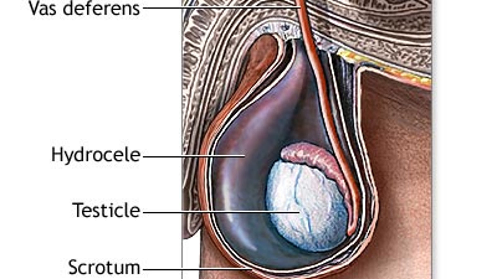 The Hidden Menace That Is The Scrotal Hydrocele