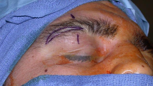 scar tissue arts club
