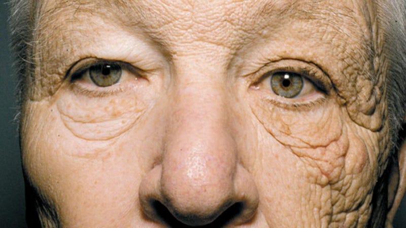 Illustration for article titled La prueba definitiva de que el sol te envejece prematuramente