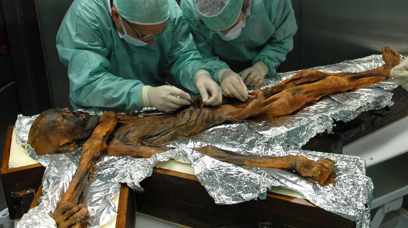 Scientists taking samples from the Iceman's stomach.