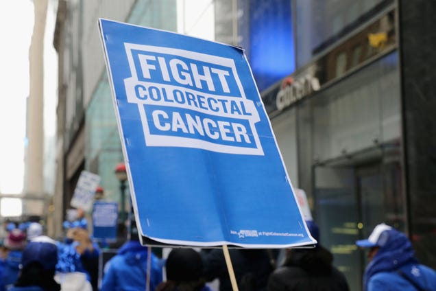 45 Is the New 50 When It Comes to Colorectal Cancer Screening