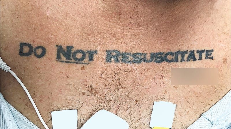 Unconscious Patient With 'Do Not Resuscitate' Tattoo Causes Ethical Conundrum at Hospital