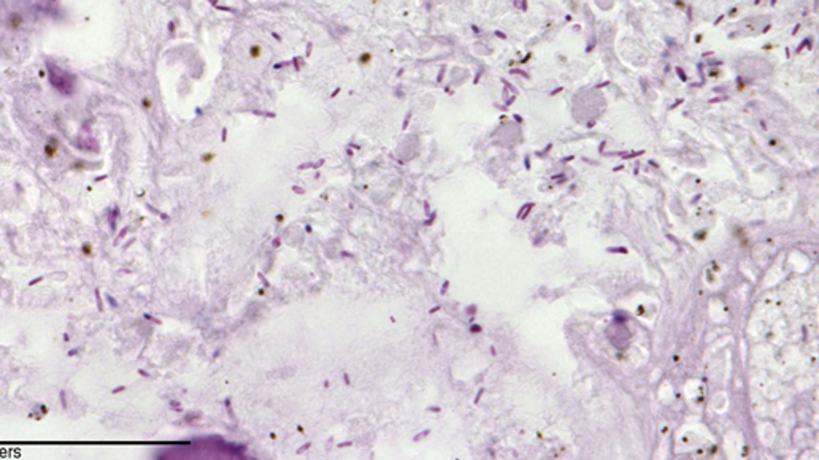 A Common Bacteria Can Be Injected Directly Into Tumors to Fight Cancer