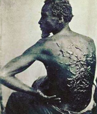 Scars from a whipping on the back of a man who had been enslavedInstagram