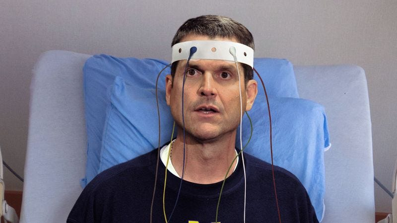 Illustration for article titled Jim Harbaugh Disappointed To Learn Electroshock Therapy Session Already Over