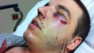 Illustration for article titled The US Marine Behind This Brutal Attack On A Cab Driver Won't Be Charged With A Felony