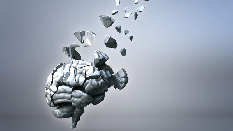 Illustration for article titled Listen to a brain seizure turned into music