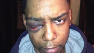 Photo of Taj Patterson taken shortly after the beating he suffered in December.Youtube