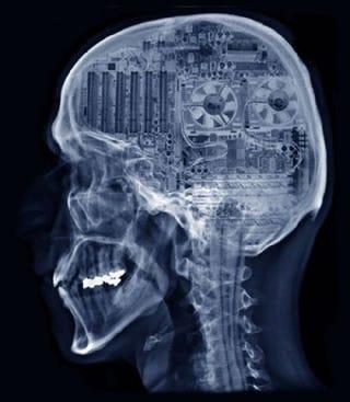 Illustration for article titled Brainputer