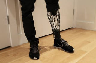 Illustration for article titled This Beautifully Minimalist Prosthetic Is Made From 3D Printed Titanium