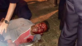 This photo of Martese Johnson shortly before his arrest March 18, 2015, went viral. Johnson claimed Virginia Alcoholic Beverage Control agents beat him bloody. The agents claimed Johnson fell during the arrest. The agents have now been cleared of wrongdoing.Twitter