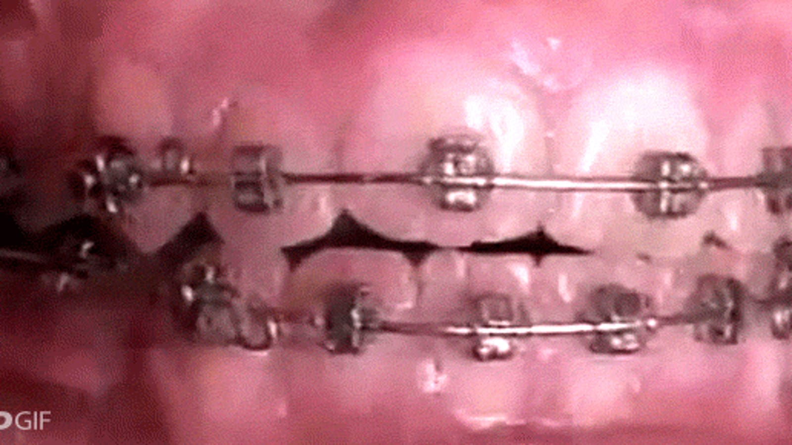Video: How braces can amazingly straighten crooked teeth