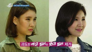Illustration for article titled Depressing? Inspirational? Reverse Plastic Surgery Show Hits Korea