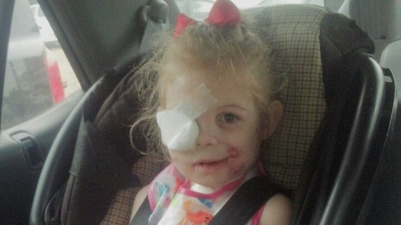 """Illustration for article titled 3-Year-Old Mauled By Pitbulls Told to Leave KFC Due to """"Scary"""" Scars"""
