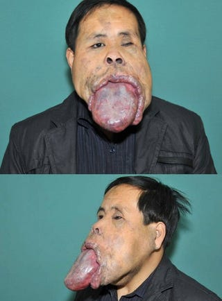 Illustration for article titled Man affected with massive tongue hasn't closed his mouth for two decades