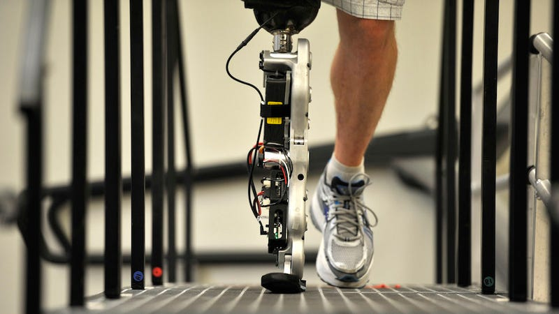 Illustration for article titled World's First Fully Bionic, Mind-Controlled Leg Goes for a Walk