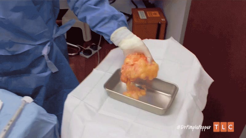 Dr Pimple Popper Season 3 Episode 3 Recap Head Bumps 亚博