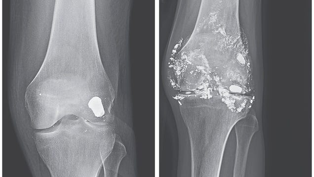 A Bullet to the Knee Gave a Man Lead Poisoning, 14 Years Later