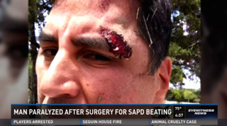 The gash above Roger Carlos' eye is one of the injuries he sustained after being beaten by San Antonio cops.KENS 5 screenshot