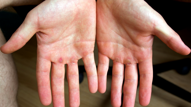 how to get rid of calluses on hands from weightlifting