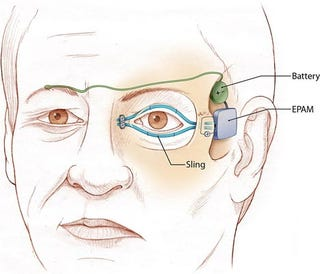 Illustration for article titled An Idea Whose Time Has Come: The Artificial Eyelid