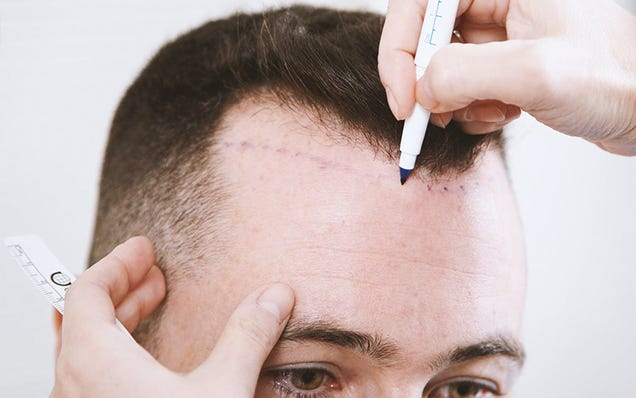 Illustration for article titled Avoid Misleading and Deceptive Hair Transplant Marketing Tactics