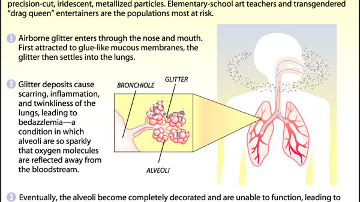 Cases Of Glitter Lung On The Rise Among Elementary-School Art Teachers