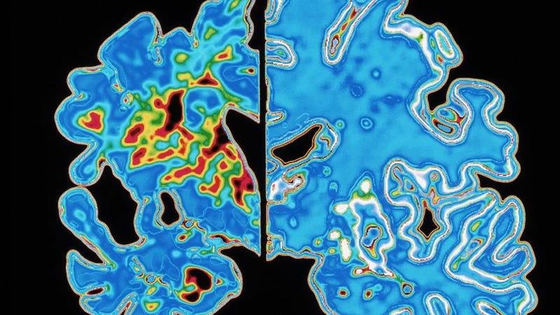 """Illustration for article titled Scientists Urge Caution in Wake of """"Transmittable"""" Alzheimer's Claim"""