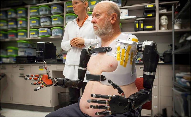 Illustration for article titled Esta increíble prótesis robótica doble se controla con el pensamiento