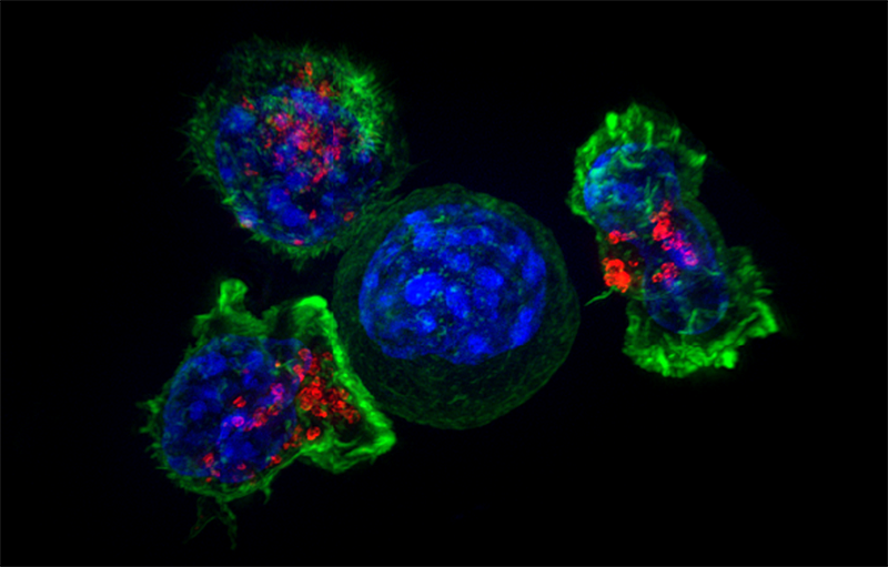 Tres células T atacan una célula cancerosa