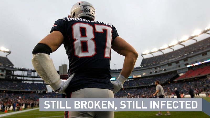 Illustration for article titled OK, Maybe It's Time For Patriots Fans To Start Panicking About Rob Gronkowski's Injured Arm