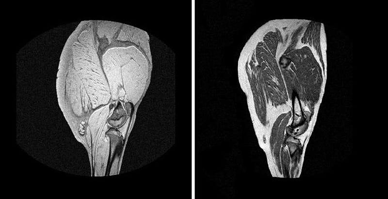 Imagen de una pieza de jamón en un escáner de resonancia magnética.