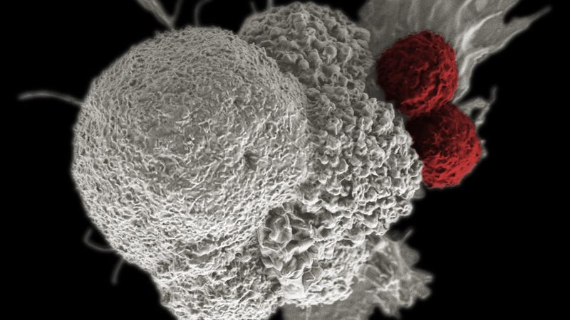 Above, a cancer cell (white) being attacked by T-cells (red). Image: National Institutes of Health