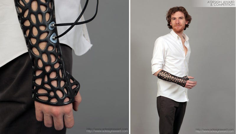 Illustration for article titled Una escayola impresa 3D y con ultrasonidos para fracturas del futuro