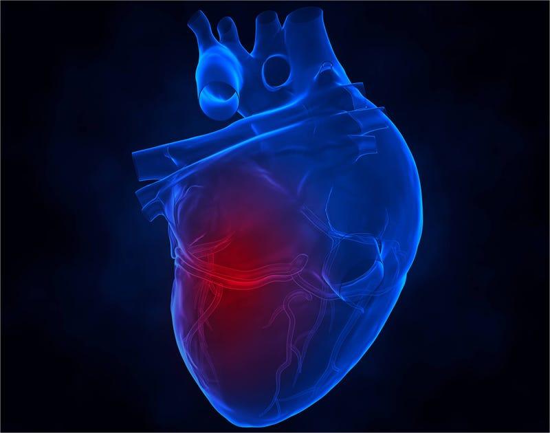 Illustration for article titled Descubren la principal causa medioambiental de los ataques al corazón
