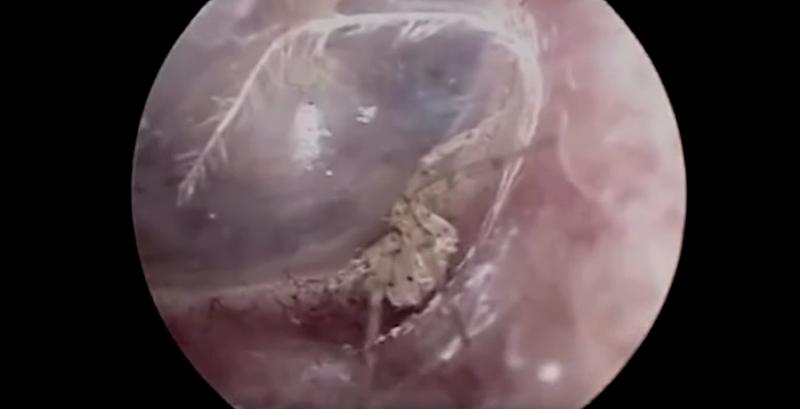 Illustration for article titled Acude al médico por un extraño picor en la cabeza y le encuentran una araña anidando en el interior del oído
