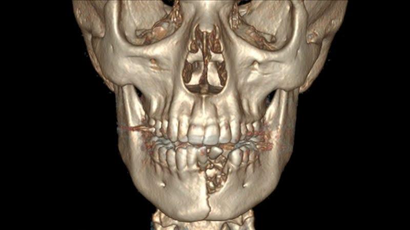 Illustration for article titled Este joven tiene la boca sellada después de fracturarse la mandíbula y los dientes al estallar su cigarro electrónico