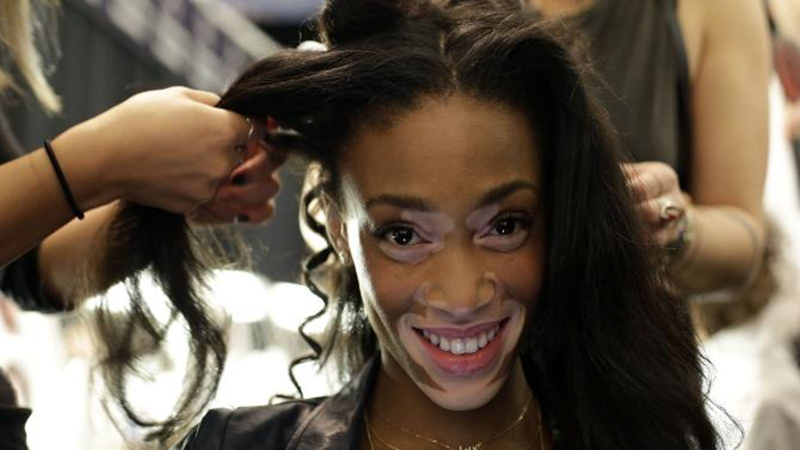 Model With Vitiligo Doesn't See Anything Wrong With White