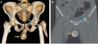 Illustration for article titled Man's Femur Goes Into His Ballsack After Motorcycle Crash [NSFW]