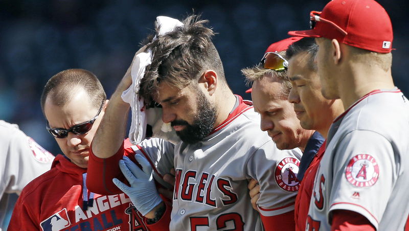 Angels pitcher has brain surgery
