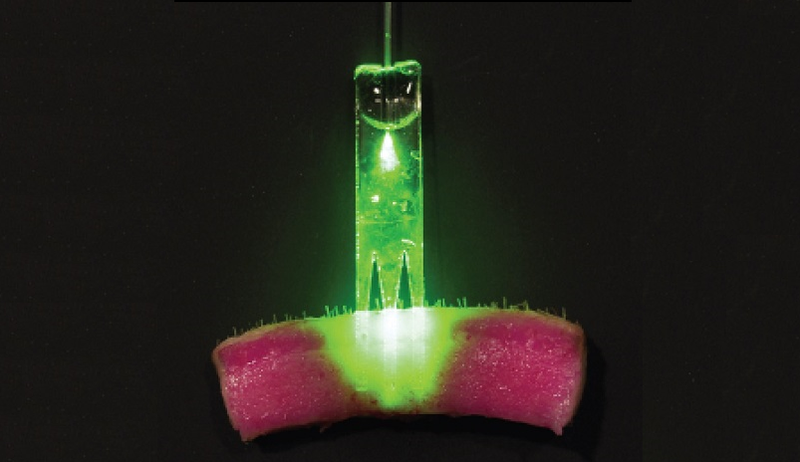 Illustration for article titled Someday, Suturing a Wound Will Involve Lasers